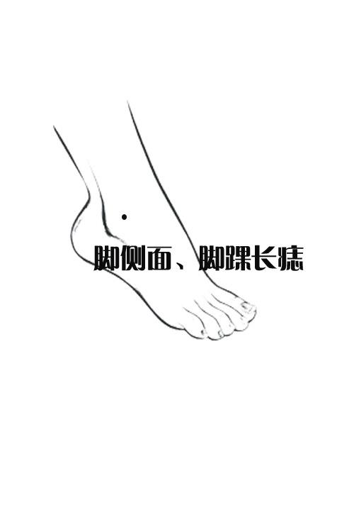 解析脚底凶吉位置的痣相