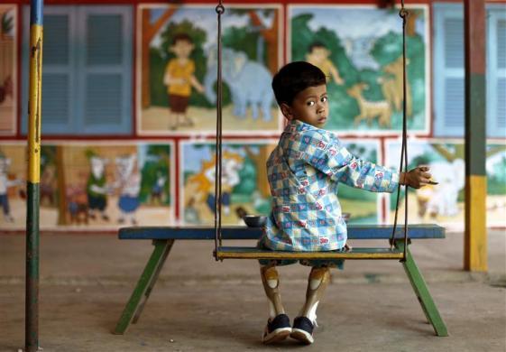 小儿麻痹症可不可以吃花生