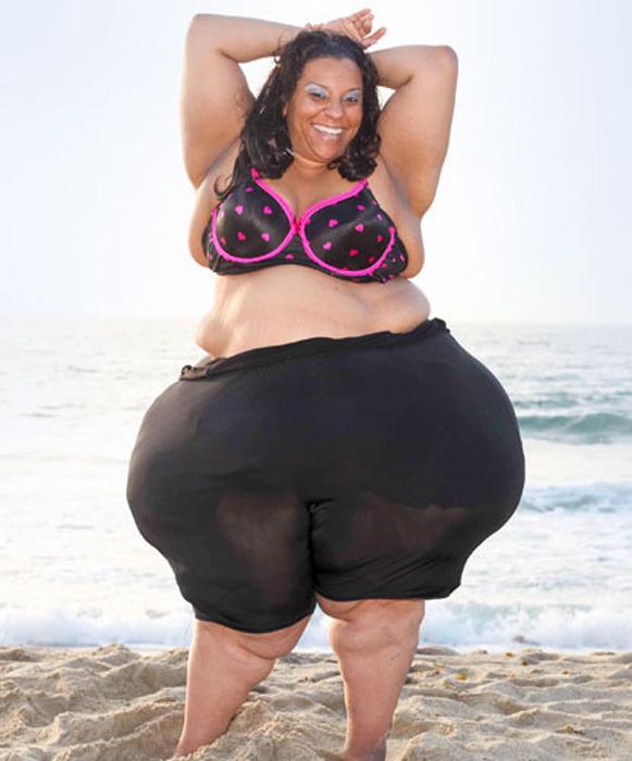 盘点人体之最:美国巨乳症女子胸部重77斤644