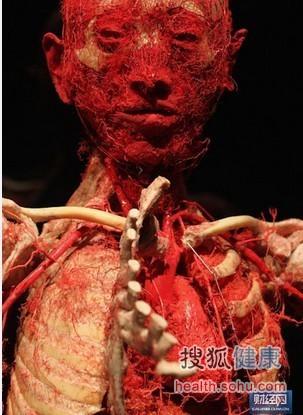 图为哈根斯的人体标本展览.图片